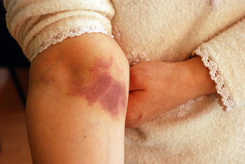 Treating Burn Wounds