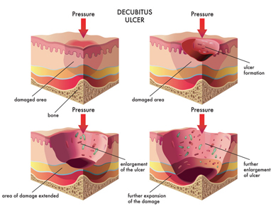 Decubitus Ulcer Wound Care