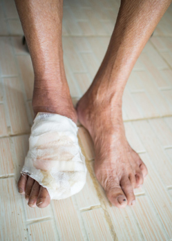 Treatment Options for Diabetic Foot Ulcer