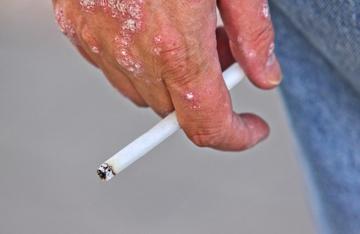 Smoking and Wound Healing