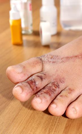 Healing of Burn Wounds