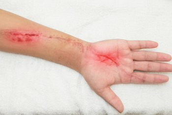 Surgical Site Wounds